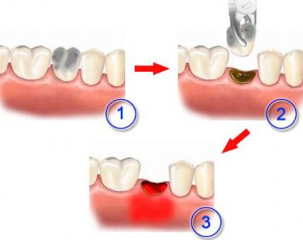 Альвеолит зуба