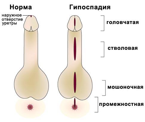средний размер половой член Сысерть