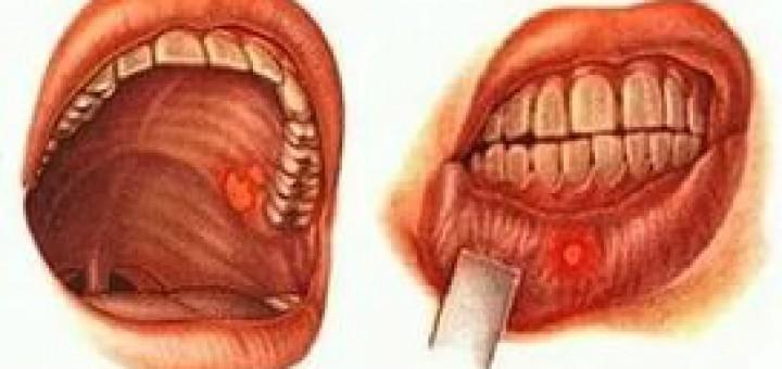Чем вылечить стоматит на языке в домашних