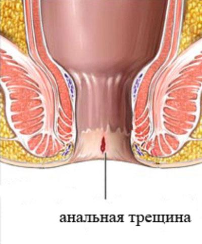 sfinkter-analnogo-prohoda